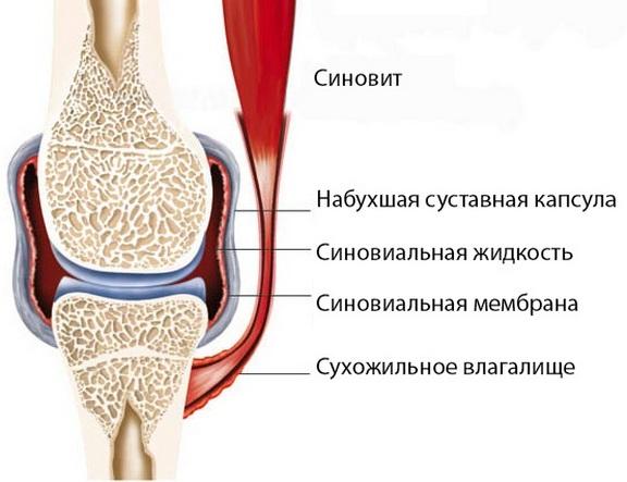 Kuidas ravida valu polveliigese paindumisel