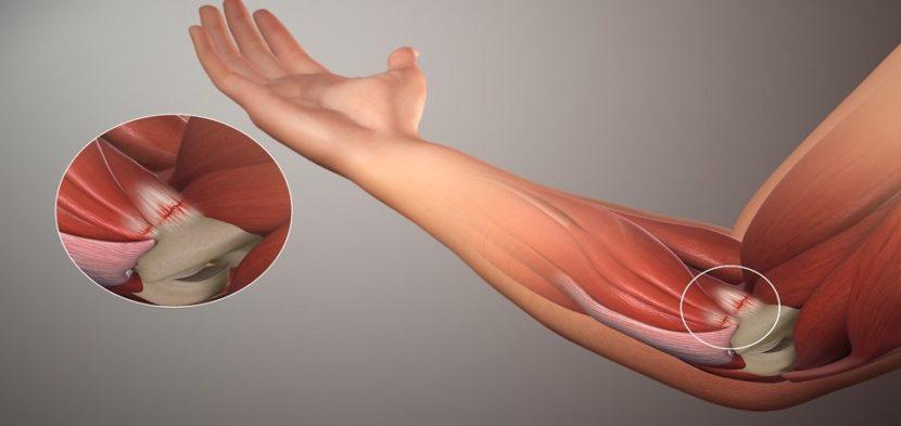 Lahendab kuunarnuki liigese paindumise ja pikendamise ajal Liigeste artroosi harja kaed