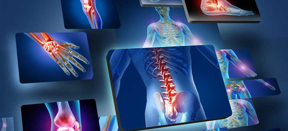 liigesevalu kui ravida foorum 3 kraadi ahviliste liigeste artroos