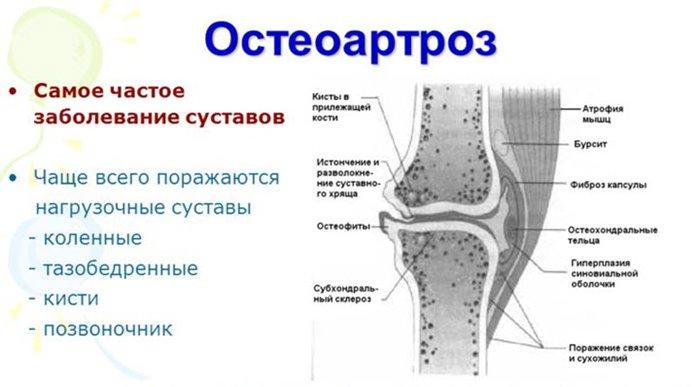 Liigeste tosised haigused Kuidas valmistada ozosteokondroosi salvi