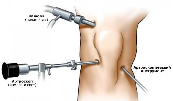 Artroosi ravi Hevizis