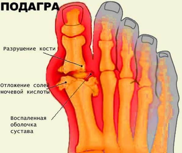 Meetodid liigeste raviks kodus Hoidke sormede ja jalgade liigeseid