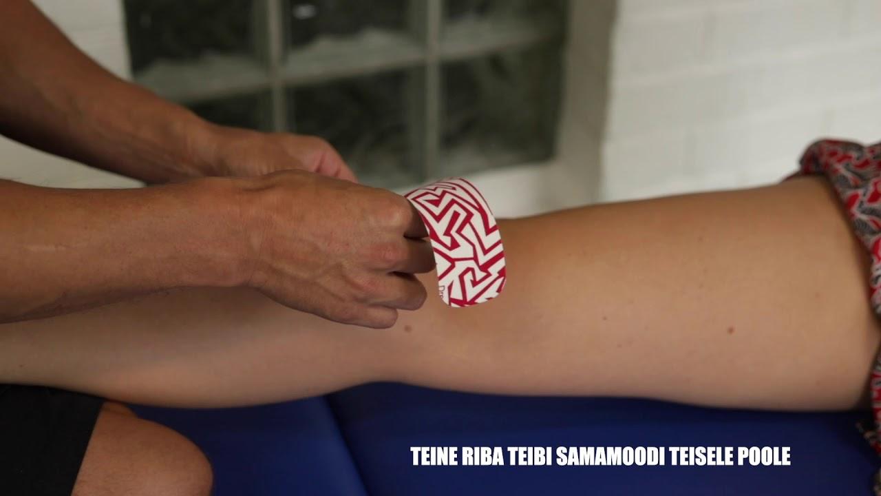 Mida teha, kui liigend on jalgsi haiget teinud Tugev valu kuunarnuki liigestes