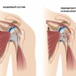 valu puusaliigese, kui kondides naistele pohjustab kui ravida