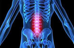 Osteokondroosi kreemid ja salvid Mis on kuunarnuki liigeste artroos