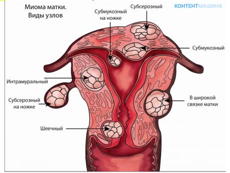 Parast emaka ja munasarjade eemaldamist kahjustavad liigeseid Kana kapad liigesevalu