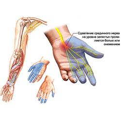 Parema kae harja valus liigesed Valu kate sormede liigestes