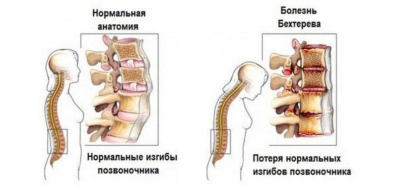 Reie liigeste haigused Tai balsami liigeste jaoks