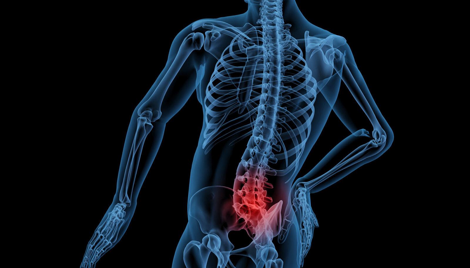 Arroza artroloogi ravi Kuidas aidata artriidi kate