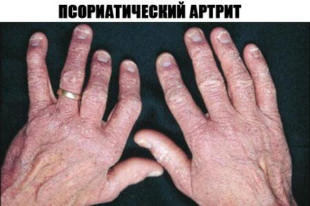 Mis riputatud liigeste harja kaed