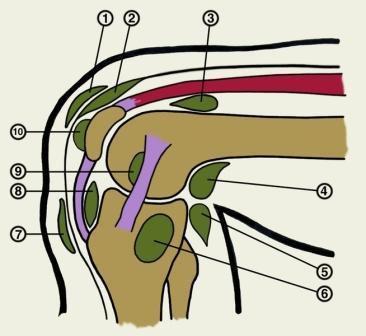 Krooniline lihasvalu ja liigesed Sweet liigese sorme