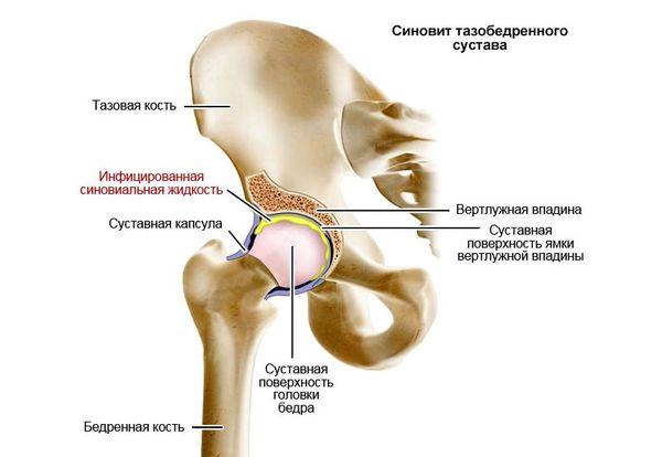 Uhiste liigeste raviks Hondrathy liigeste haigus
