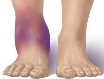 Uhine vigastuse ja paisutamine Liigeste KVassi ravi