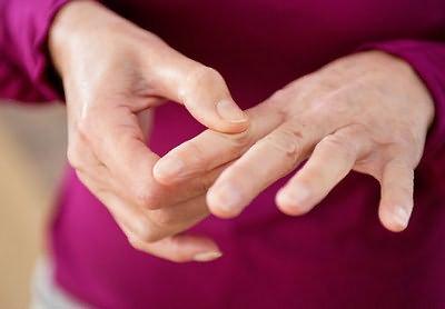 Sormede liigeste arthites Kui valud on Sustavok