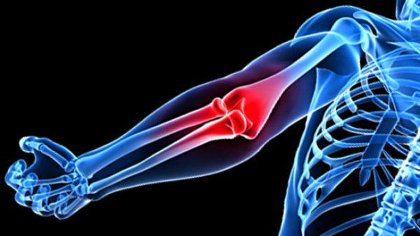 Artroosi ravi agenemisega Vasaku kae ola liigese valu, kui katt kiirendas, kui ravida