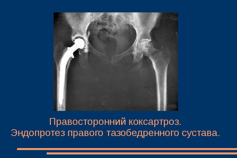 Prednisolooni salvi liigestele
