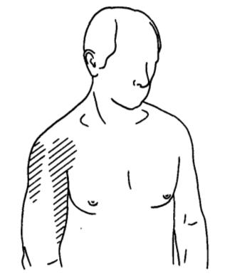 Liigendid haiget une puudumise tottu Valu lihases ja liigestes kogu kehas ja punased laigud