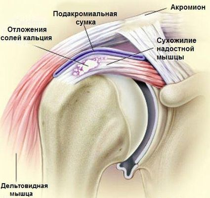 Vasaku kae ola liigesevalu valu tableti jala liigestes