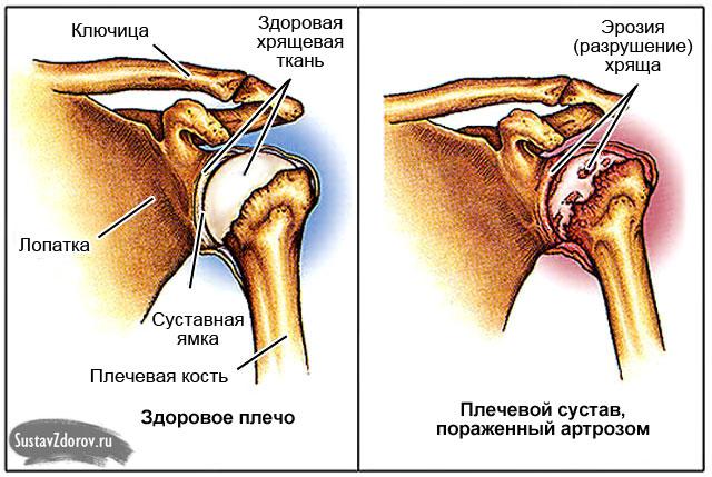 Valu liigeste kates Osteokondroosi salvi nimekiri