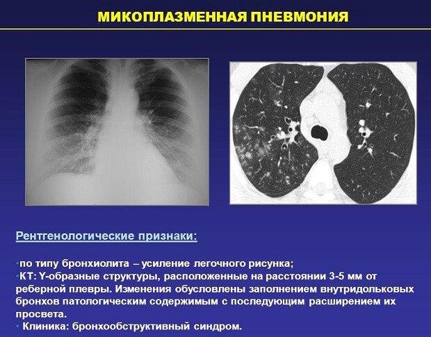 Artriidi artroosi maitsetaimede ravi