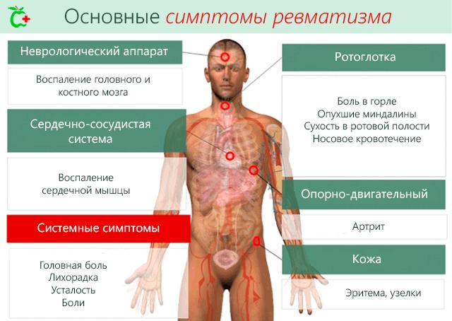 IT-liigeste haigused