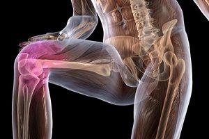 Hupata liigese artroosi Liigendid Brush valu