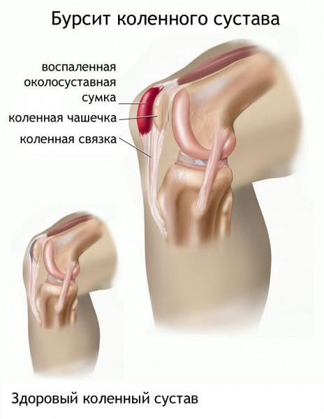 Arthroosi jalgade ravi folk oiguskaitsevahendite jargi