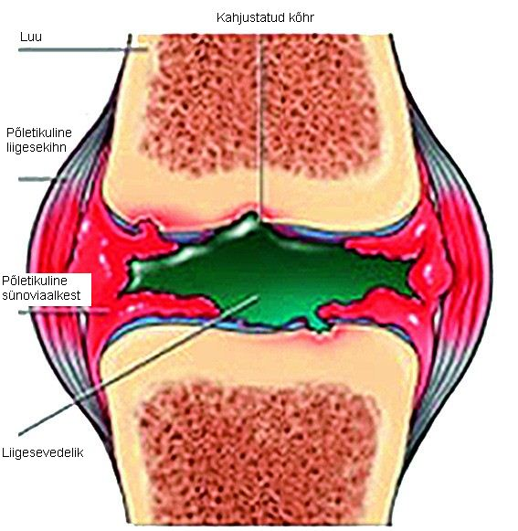 Hard Hip polve Eemaldage tugeva valu uhises