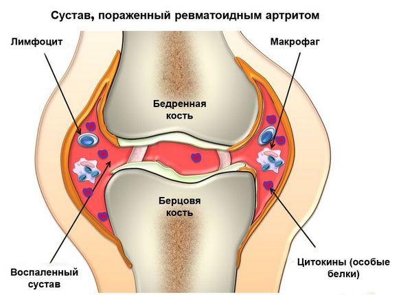Mis voib pohjustada liigeste poletikku Meditsiini artriidi kaed